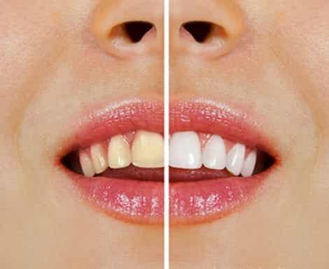 How to Easily Whiten Your Teeth with Natural Products