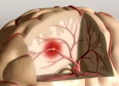 cerebral ictus