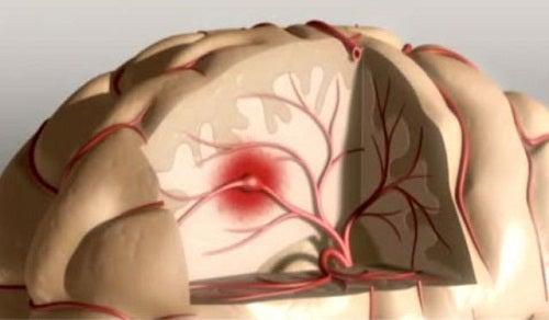 Ways to Prevent Strokes