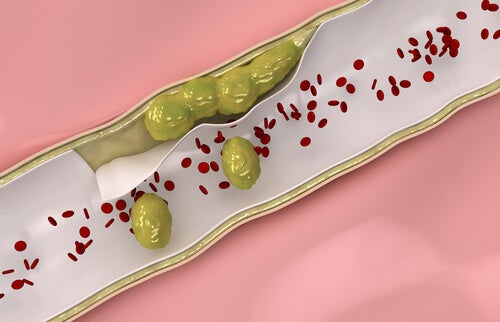 Natural Remedies for Cleaner Arteries
