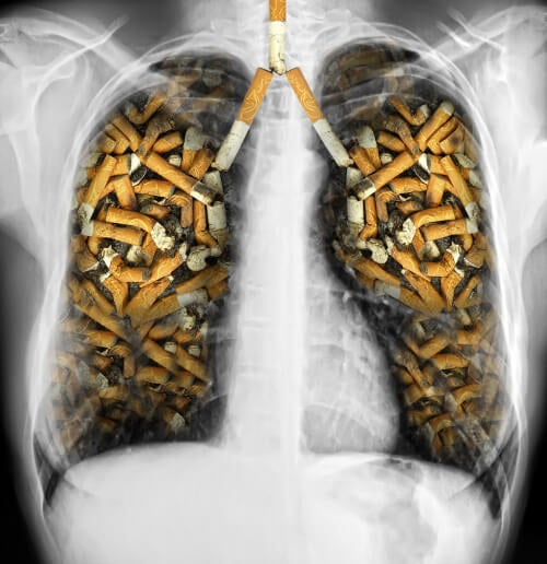 Lungs filled with cigarettes to illustrate why you should quit smoking