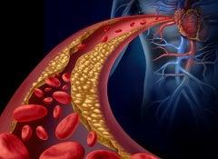 Triglycerides-500x488
