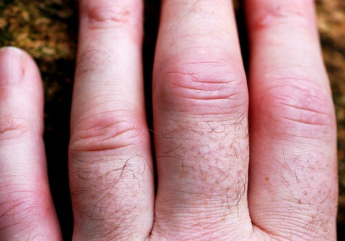 Swollen fingers with arthritis