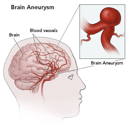 A chart of brain aneurysms