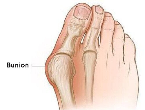 Why Bunions Form