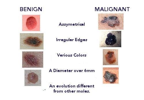 melanoma moles