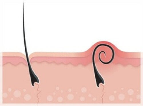 How to Treat and Prevent Ingrown Hairs