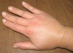 1 swollen hands