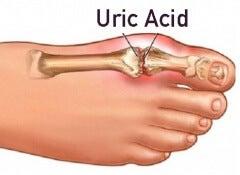 Uric-acid copy