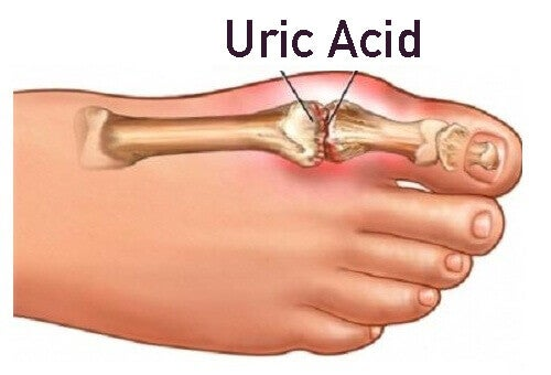 lowering uric acid in blood naturally uric acid blood test urea food to avoid uric acid kidney stones