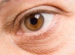 eye-bags-4