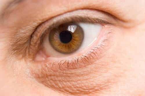 How to Lighten or Eliminate Eye Bags