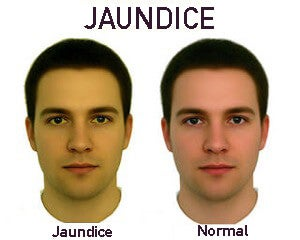 Comparing jaundiced skin with normal skin.