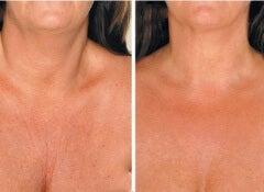 neck-wrinkles-3