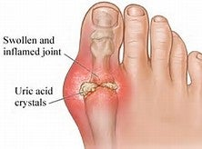 Dangers of Uric Acid and How to Avoid it