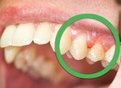 1 gingivitis