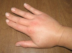 1 swollen hand