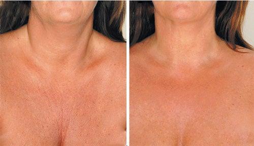 2 chest wrinkles