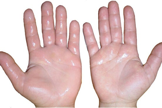 excessive sweating in the hands