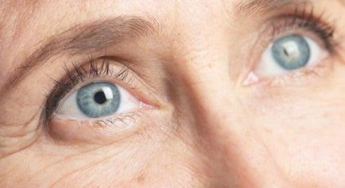 4 eye wrinkles