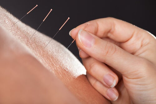 Acupuncture.