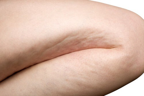 Natural Tips and Treatments for Cellulite