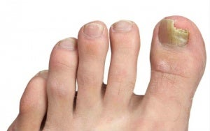 Chinese treatment for nail fungus