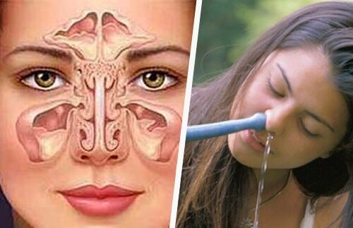 Simple and Natural Ways to Treat Sinusitis