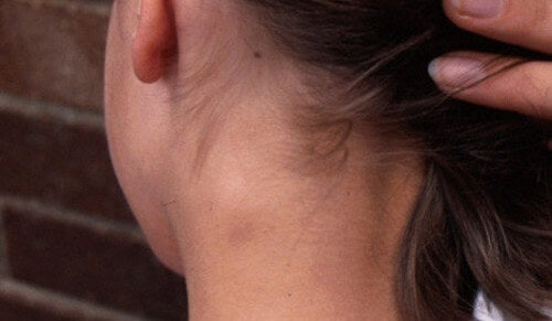 What Should You Do About Swollen Lymph Nodes?