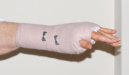 A lady's wrist in a splint