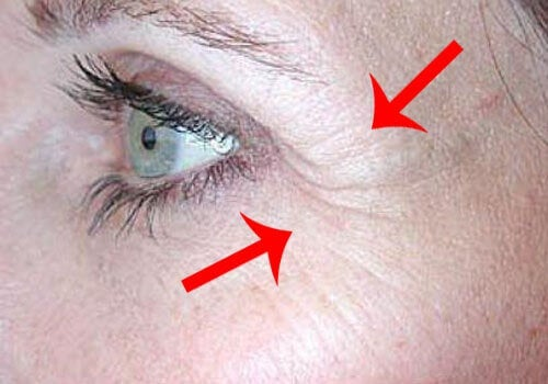 Crow's feet next to eyes exercises to tone your face