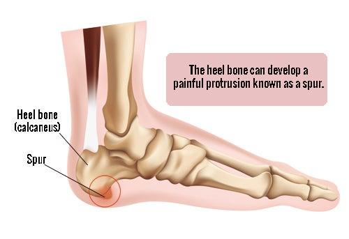 발 뒤꿈치 통증