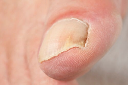 A closeup of a toenail.