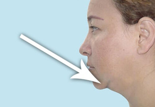 4 Easy Tips for a Slimmer Neck