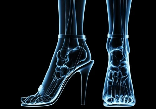 High heels are among those shoes you should not wear