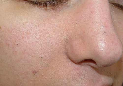 Cleanse Blackheads: 4 Facial Masks