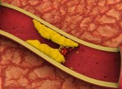1 cholesterol