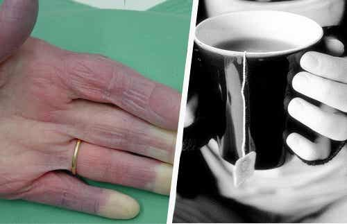 Cold Hands: Some Possible Causes that You Should Know