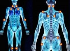 1 fibromyalgia pain