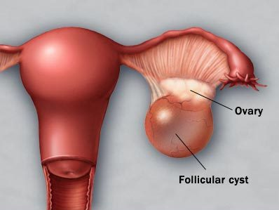 1 ovary