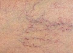 1 spider veins