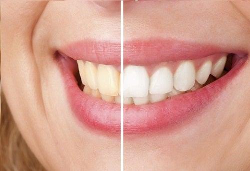 4 teeth white
