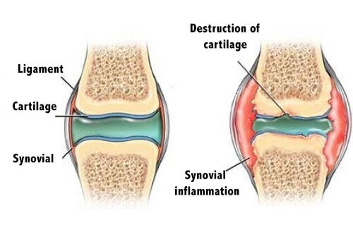 How to Prevent Cartilage Pain