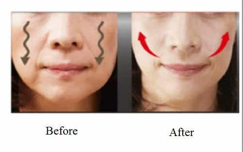 4 Tips to Smooth and Lift Sagging Cheeks