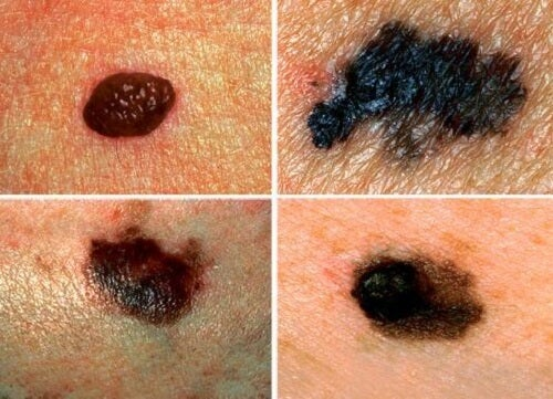 Learn to Detect Possible Skin Cancer