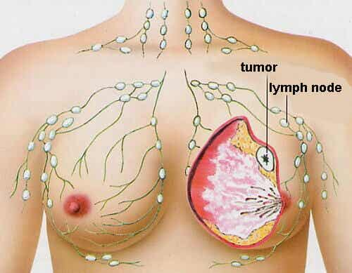 Cancer in Women: The 5 Most Common Types