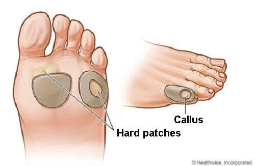How to Treat Calluses Naturally