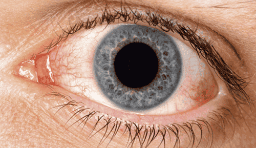 Some Great Natural Remedies for Dry Eyes
