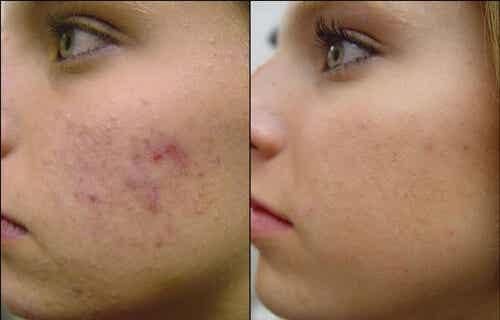 4 Homemade Anti-Acne Facial Masks