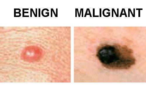 difference between benign and malignant